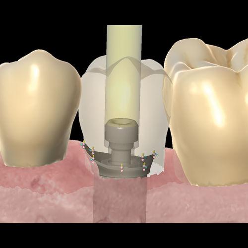 software di progettazione di protesi dentale / di visualizzazione 3D / FAO / CAD
