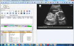 Modulo software per esami ostetrici / di gestione / diagnostico / di condivisione OB/GYN Prime Clinical Systems, Inc.