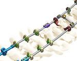 sistema di osteosintesi occipito-cervico-toracico / via posteriore / per adulto