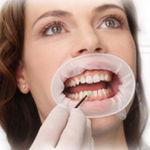 divaricatore guancia / labiale / odontoiatrico