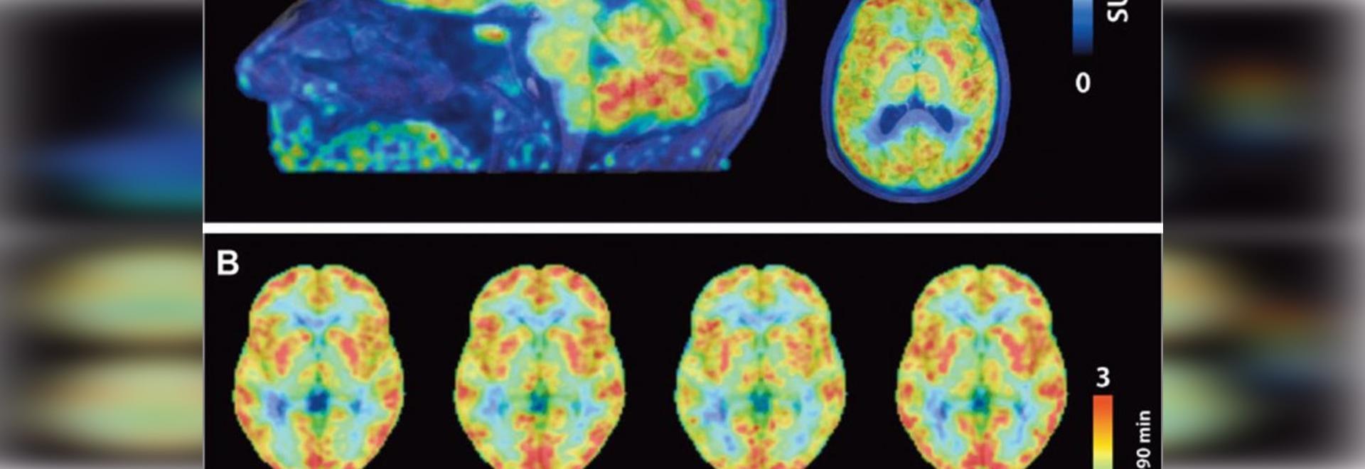 Le scansioni PET rivelano i cervelli delle donne compaiono 3 anni più giovane degli uomini