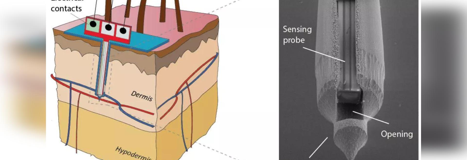 La toppa indolore della pelle di Microneedle percepisce esattamente il glucosio