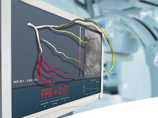 FFRangio usa i raggi x per misurare la riserva frazionaria di flusso, ora rimossa negli Stati Uniti.