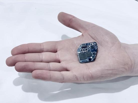 L'impianto simultaneamente indica e stimola il cervello per controllare Parkinson, altre malattie