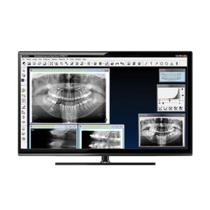 software per imaging odontoiatrico