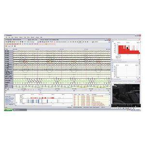 software per polisonnografia / di analisi / di controllo / di monitoraggio