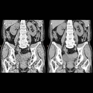 software per tomografia computerizzata