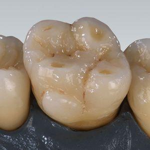 materiale odontoiatrico in zircone / per ponti dentali / per corone dentali / per perni monconi