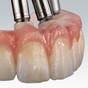materiale odontoiatrico in zircone / per restauro dentale / CAD CAM / per ponti dentali