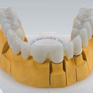 materiale odontoiatrico cera / per restauro dentale / bianco