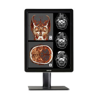 monitor diagnostico