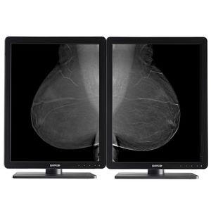 monitor diagnostico / per mammografia / per radiologia / 21.3