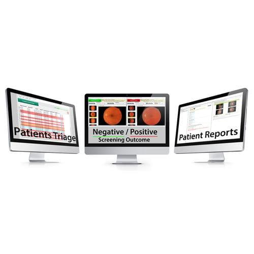 software screenin gdella retinopatia diabetica / di analisi delle immagini / di gestione del diabete / di gestione dei referti dei pazienti