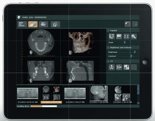 software diagnostico / di visualizzazione / di gestione dati / per imaging odontoiatrico