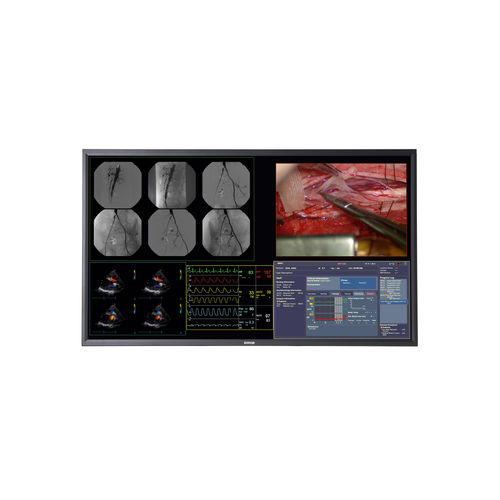 monitor per chirurgia / 4K / LCD / con retroilluminazione LED