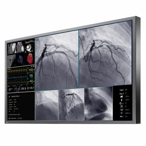 monitor per sala operatoria / per diagnostica per immagini / 4K / LCD