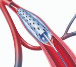 catetere PTA / per arteria sottopoplitea / per arteria femorale / per arteria iliaca