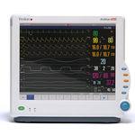 monitor ECG per paziente