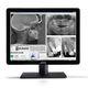 monitor diagnostico / dentale / LCD / LED