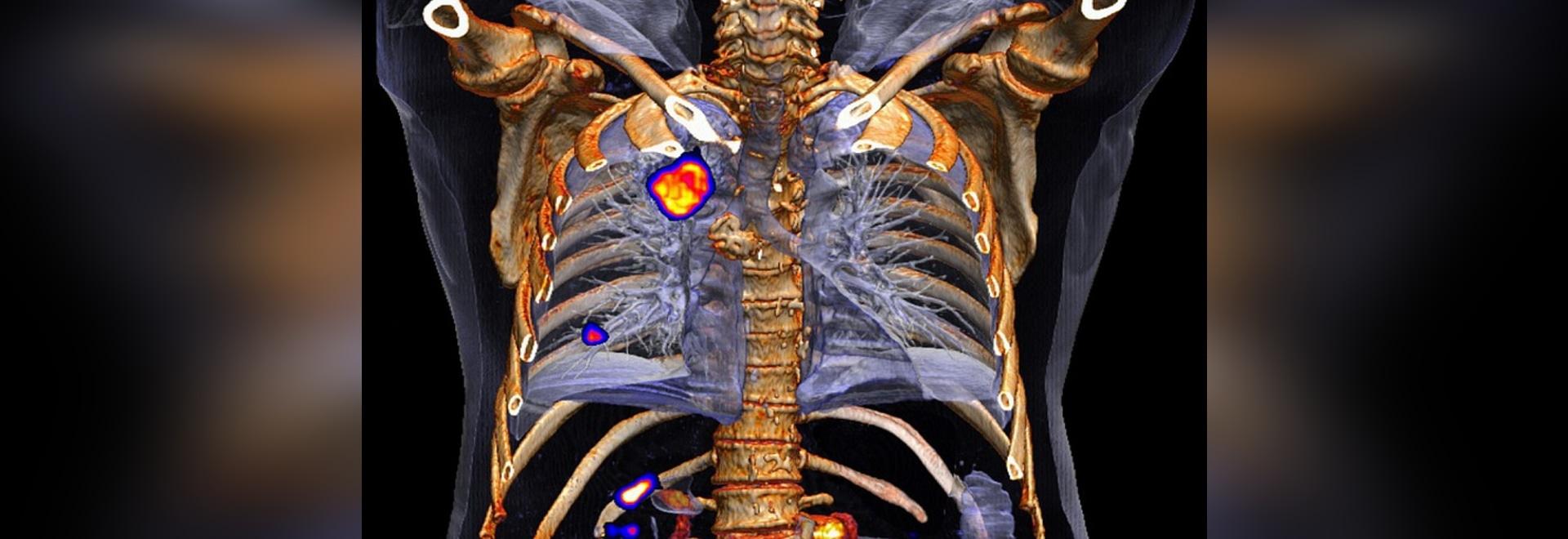 Il flusso da Siemens, un sistema di PET/CT (Copyright del mCT di Biograph: Siemens Ag)