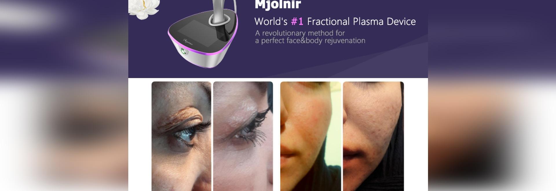 Il primo dispositivo al plasma frazionario al mondo - MjoInir