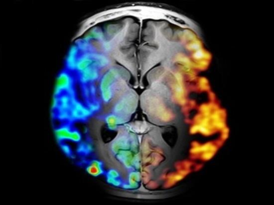 Siemens PET/MRI (Copyright: Siemens Ag)