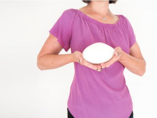 Protesi mammarie stampate in 3D