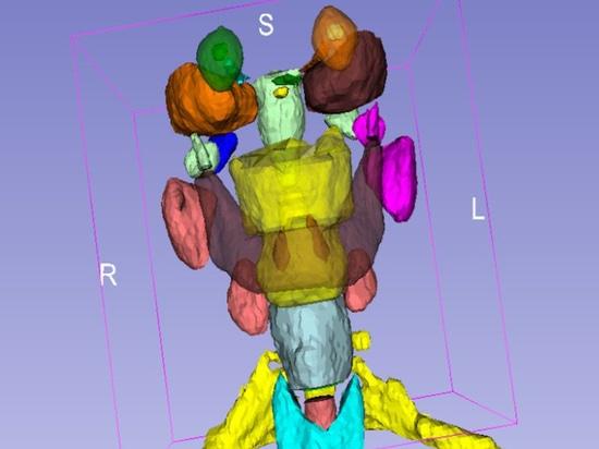 Profondo apprendimento di organi su TAC per prevenire i danni da radiazioni
