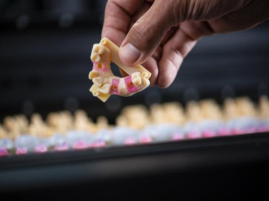 stampa 3d per la stampa dentale