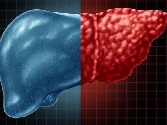 L'ecografia è utile per valutare i COVID-19 a lungo raggio, in particolare i problemi al fegato