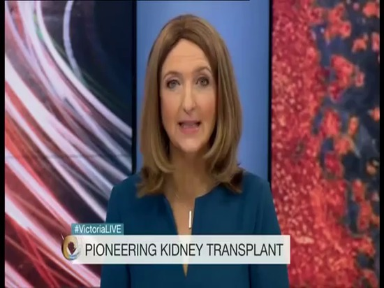 Prima stampa 3D del mondo utilizzata nel trapianto vita cambiante del rene